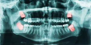 wisdom tooth extraction x-ray