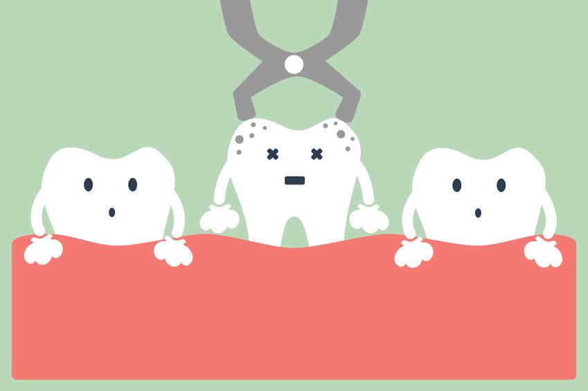 Parker dental implants